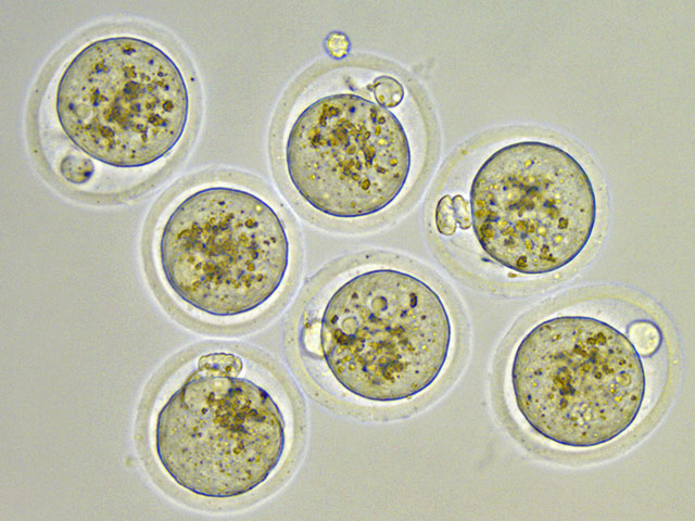 Molecular Reproduction and Regeneration - Egg being fertilized